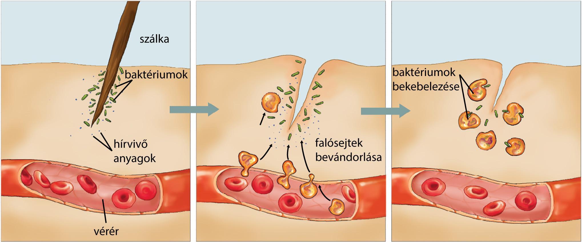 baktériumok, amelyek megtámadják a májat